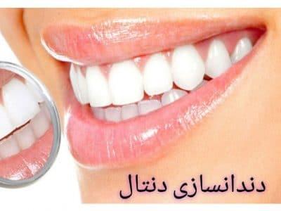 دندانسازی دنتال