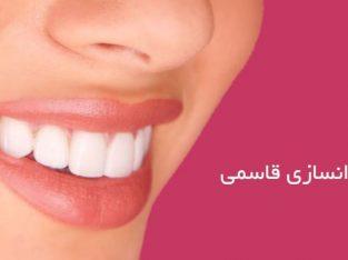 دندانسازی قاسمی