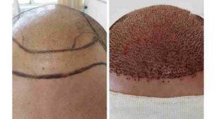 کلینیک تخصصی کاشت مو در تبریز