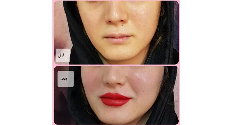 مطب پوست ، مو و زیبایی در تبریز