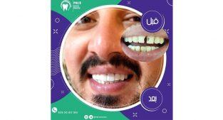 مرکز تخصصی زیبایی دندان در تهران