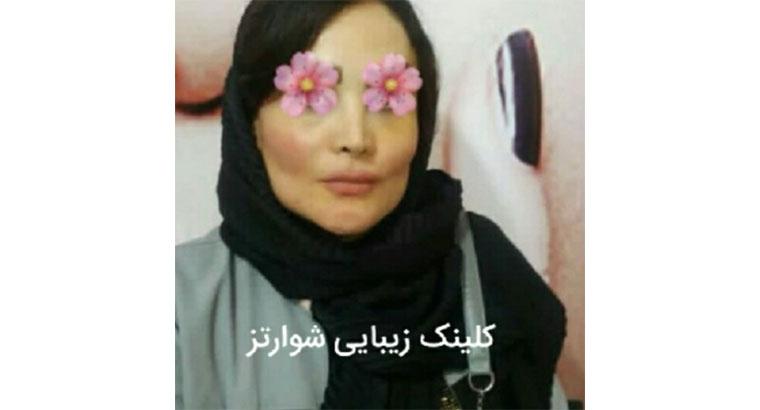 کلینیک زیبایی در تهران