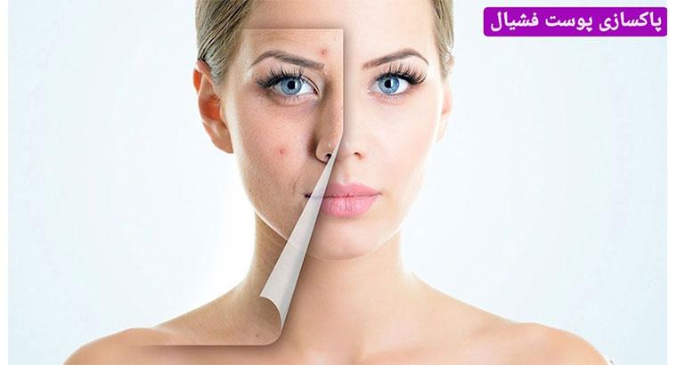 خدمات پاکسازی پوست در مشهد