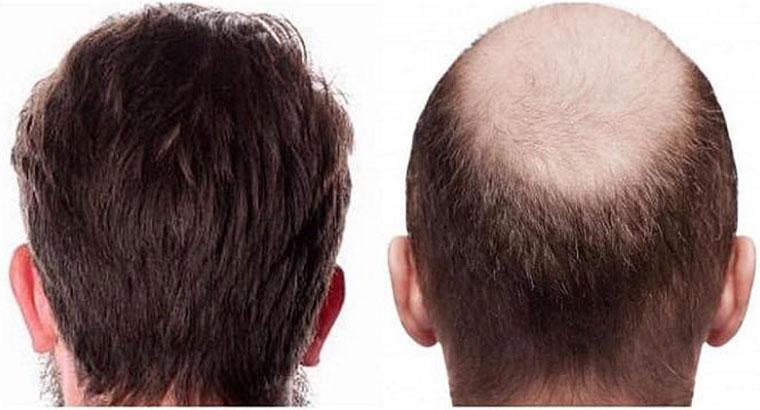 مشاوره تخصصی کاشت مو و ابرو