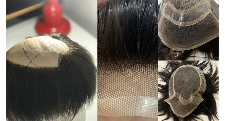 تولید و فروش پروتز موی مردانه و زنانه